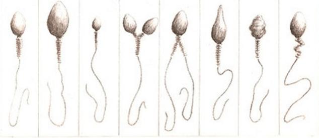 Tüp Bebek Tedavisinde Spermin Bozuk Olması