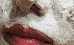 Sivilce İzlerine Karbonat Maskesi