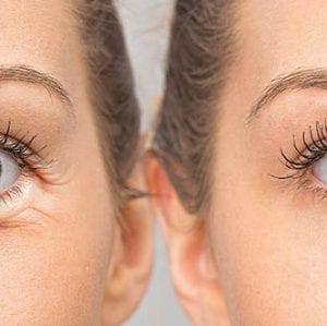 Şiş Gözler İçin Pratik Çözümler