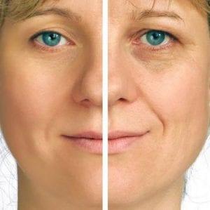 Cilt Yaşlanmasına 8 Çözüm Önerisi